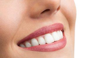Csillogó fogak