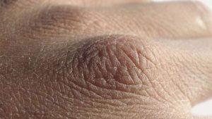 Száraz bőr